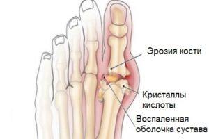Эрозия кости при подагре