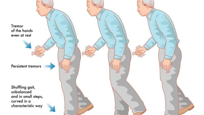Подагра и болезнь Паркинсона