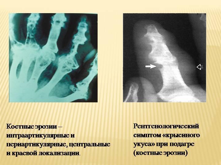 Рентген - это самый простой инструмент, который может идентифицировать эрозию кости