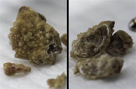 Как растворить камни в почках мочевой кислоты
