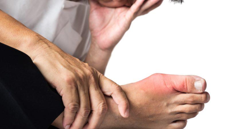 Лечение острых приступов подагры