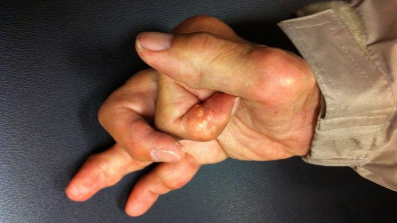 Подагра большого пальца руки
