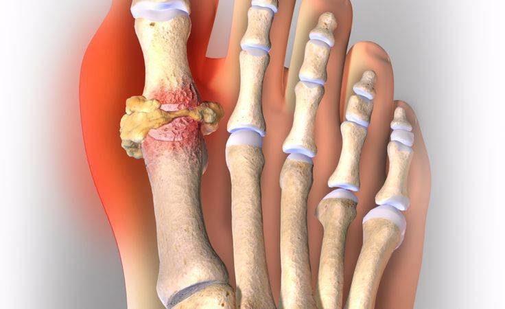 Диагноз подагрический артрит симптомы