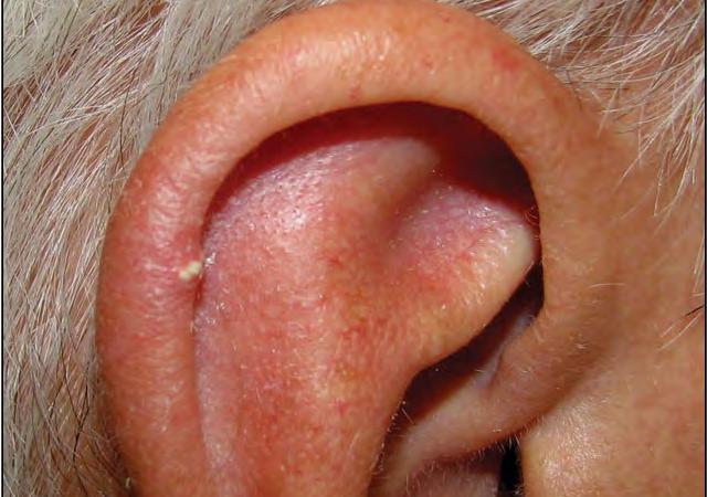 Подагра и тофусы на ушах